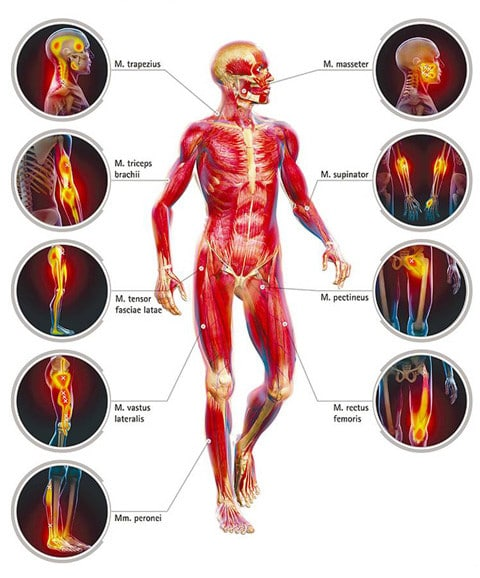 Trigger Points Front